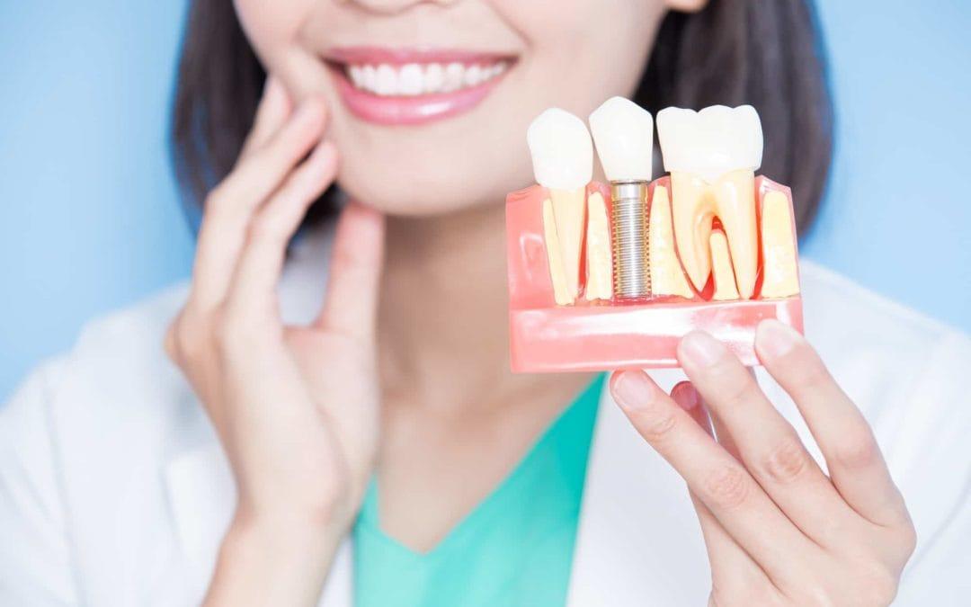 Dental Implants Versus a Bridge