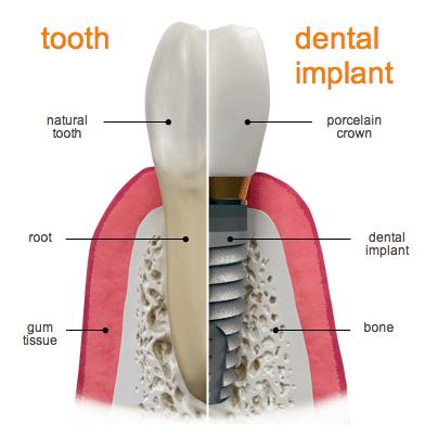 Tooth vs Dental Implant